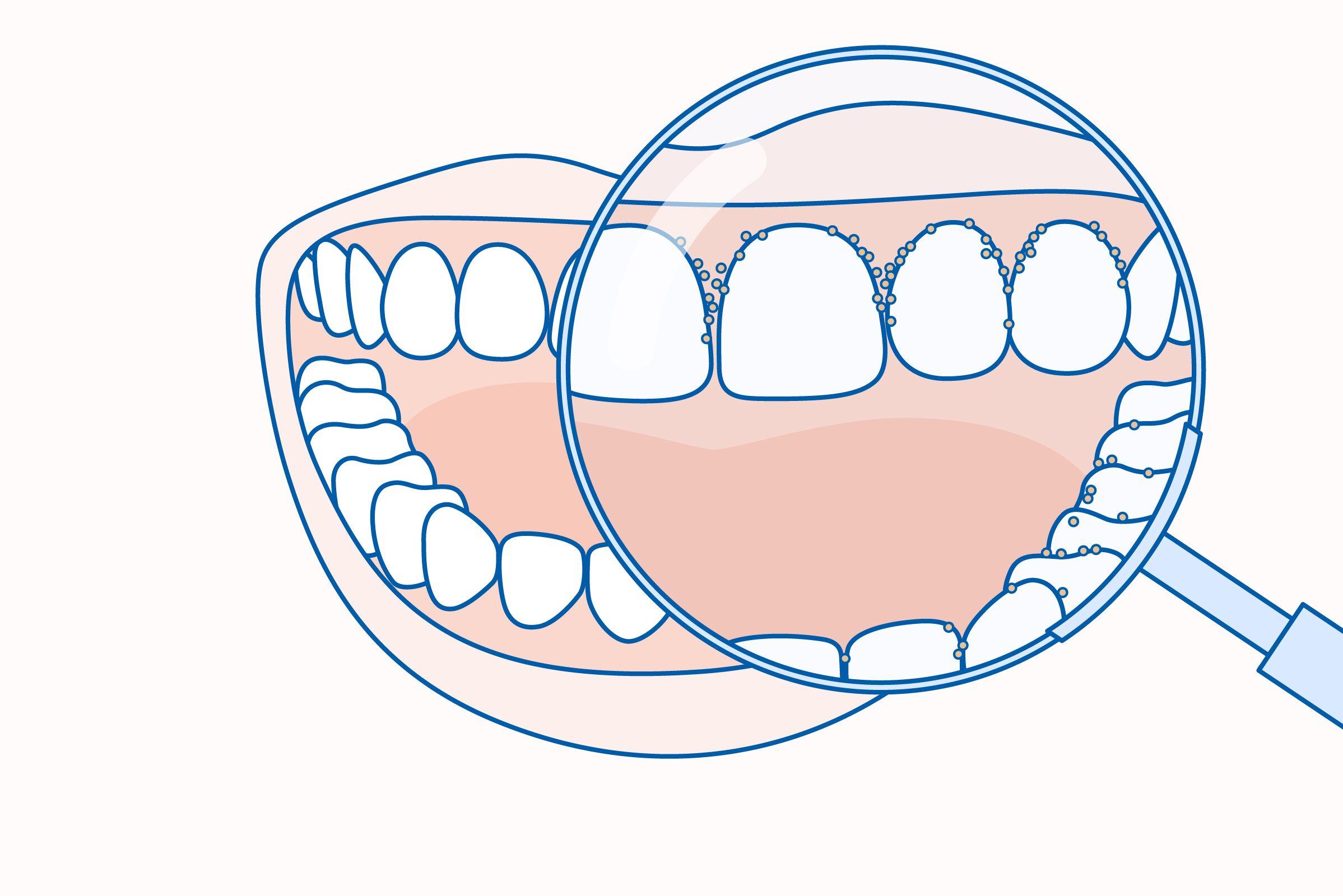 rossz lehelet periodontitisszel hogyan lehet meggyógyítani a parazitákat népi gyógyszerekkel