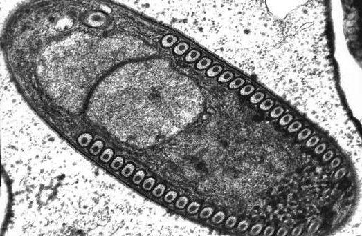 maláriás plazmodium sporozoit
