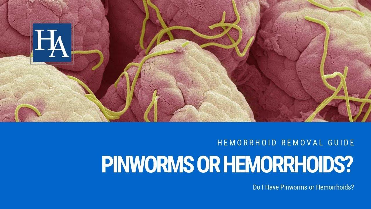 A pinworms megfertőződnek, Kör és pinworms