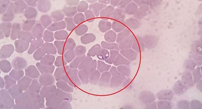 gyógyszerek a férgek felnőttek piránta bél enterobiosis