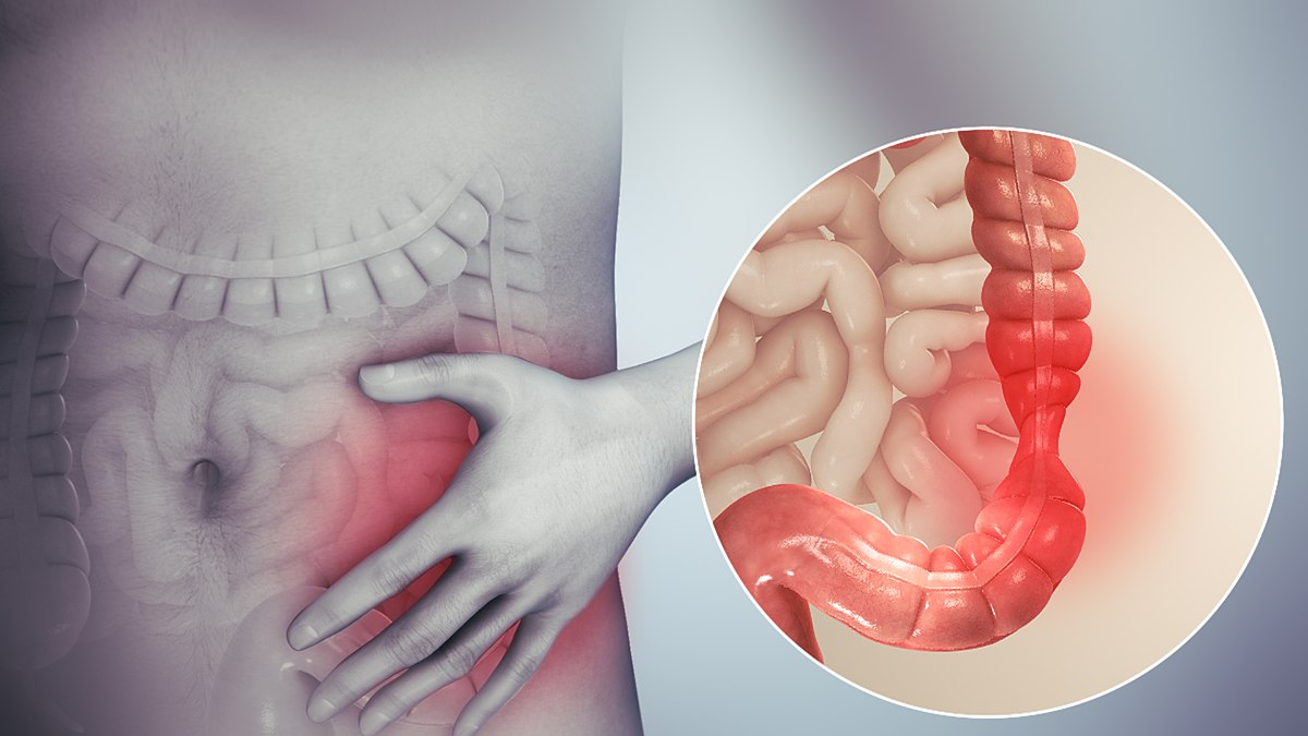 giardia symptoms nhs