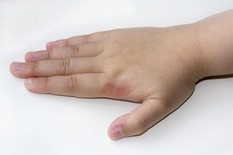 Helminthiasis: gyermekek és felnőttek tünetei