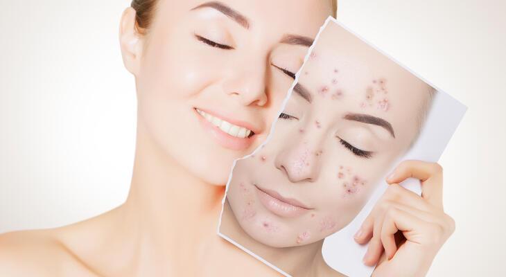 Akne, acne, pattanás kezelés - Dr Harmos Ferenc bőrgyógyász