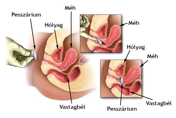 STD teszt férfiaknak urológiai mintavétellel - Medicover Laborvizsgálatok