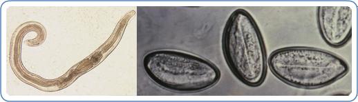 Pinworms: tünetek és kezelés gyermekeknél