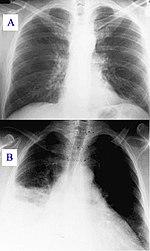 Mit tesz a tüdővel a koronavírus? - Qubit