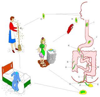 enterobiosis újszülöttekben