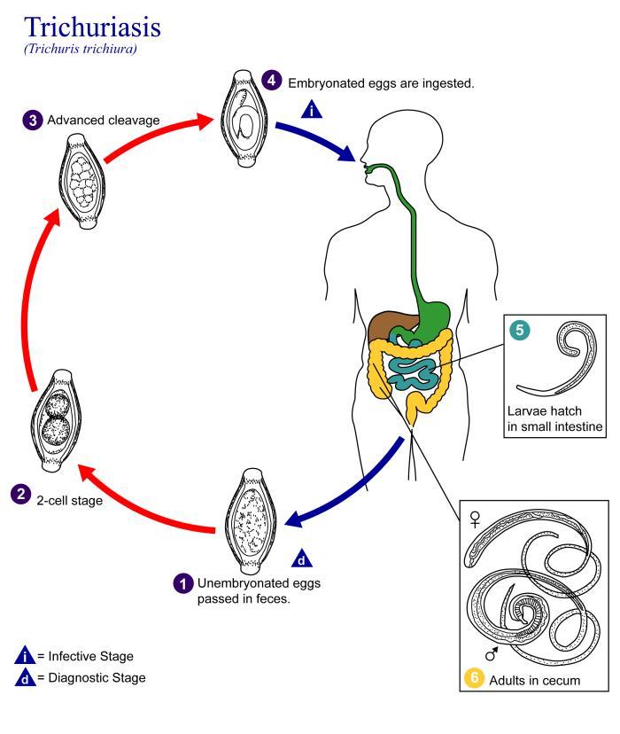 trópusi helminthiasis)