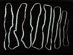 humán giardiasis- fertőzés fordul elő