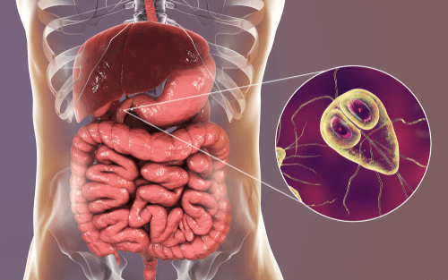 giardia diet for humans