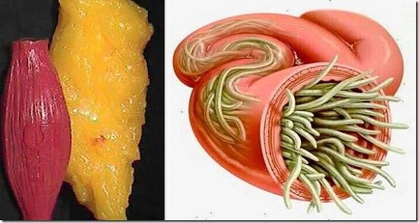 paraziták zsírban