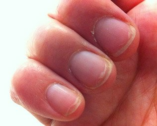 parazita körmök kezelése whipworm emberi tünetek kezelési fóruma