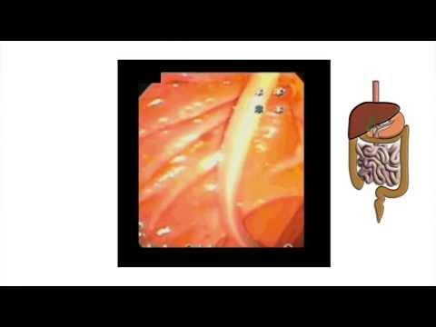 tabletták felnőttkori ascaris férgek számára