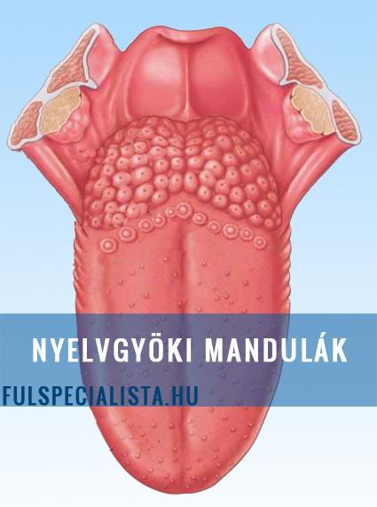 mandula arok rosszindulatu daganata