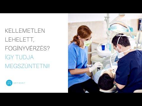 a száj kezelésének rossz székletszaga
