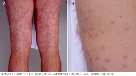 giardia rash images
