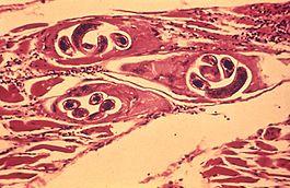 férgek gyermekekben, hogyan lehet eltávolítani a yola tranzit parazita tisztító vélemények