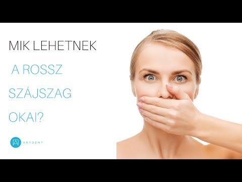 rossz lehelet a nyelvtől szag a szájból reggel alvás után