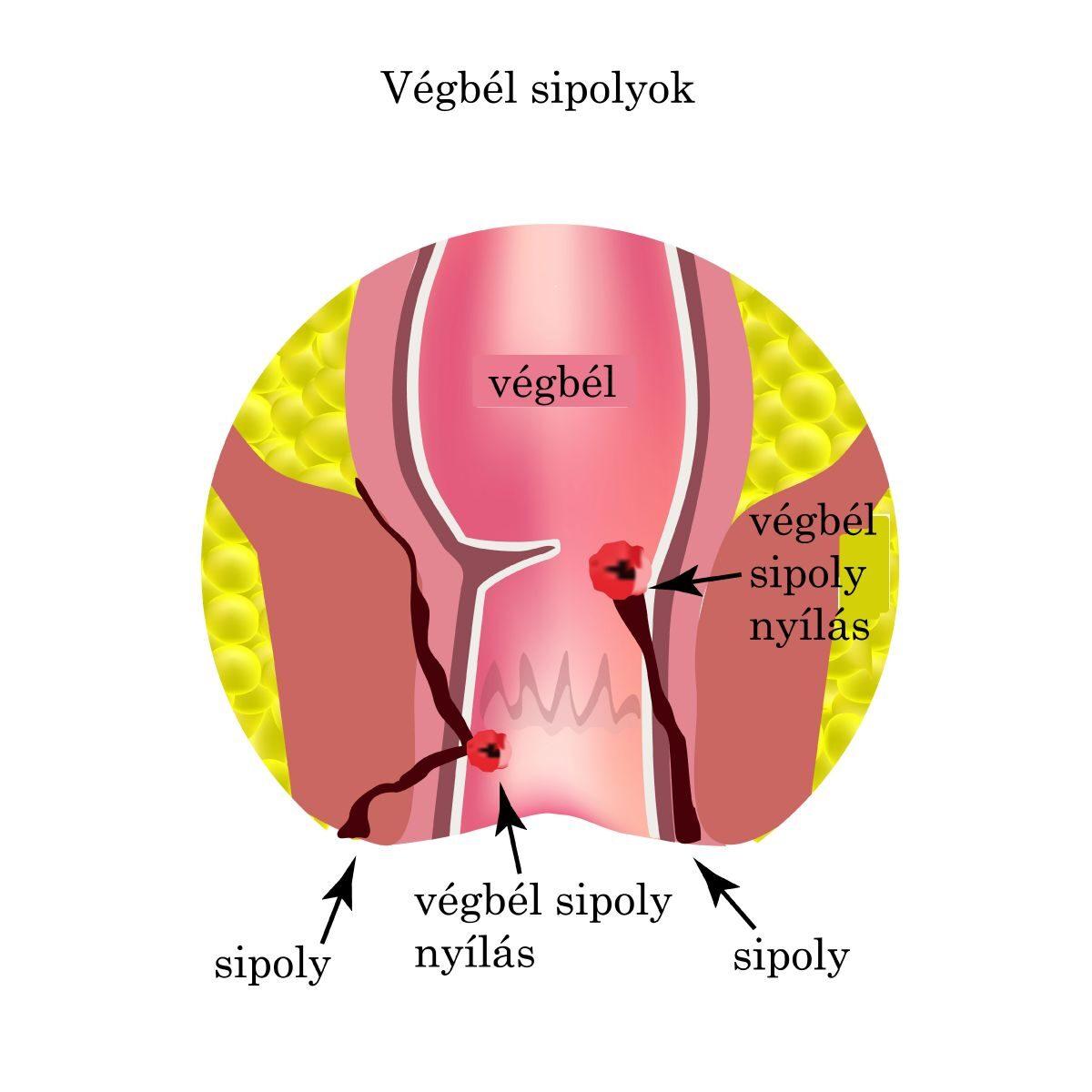 a giardiasis fertőzésének forrása