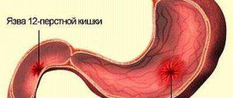 Kerekférgek az emberi testben, tünetek és kezelés, Kerekféreg tünetek felnőttek kezelésében