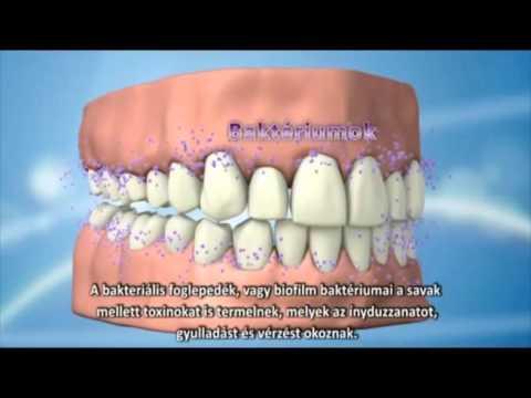 A fogágybetegségről - Az emberek százalékát érinti!