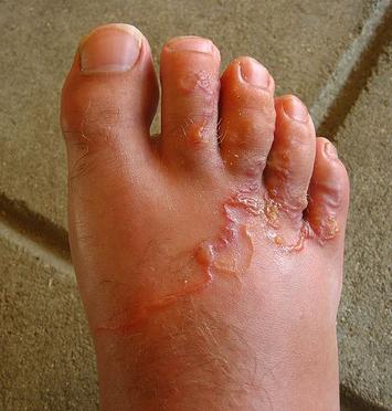 parazitá fekete bőrs vacuna giardia efectos secundarios