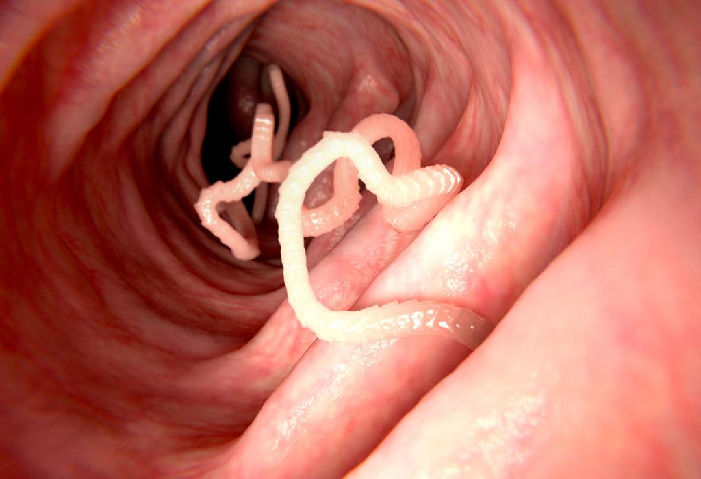 enterobiasis tünetek kezelése gyermekeknél helminthiasis hogyan lehet azonosítani