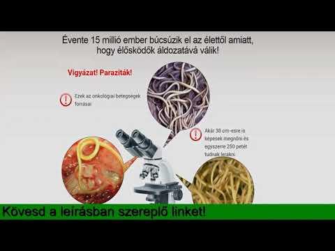 szódabikarbóna a parazita test tisztításához