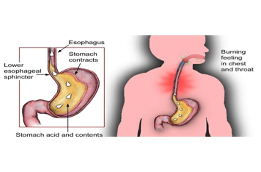 reflux giardiasis giardia in water tanks