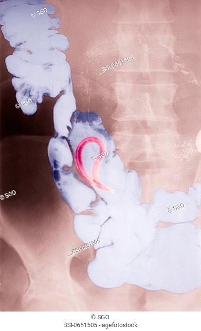 protox parazita orvoslás vélemények