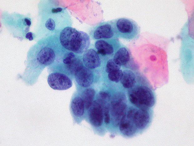 kenet mikroszkópos vizsgálati eredmények