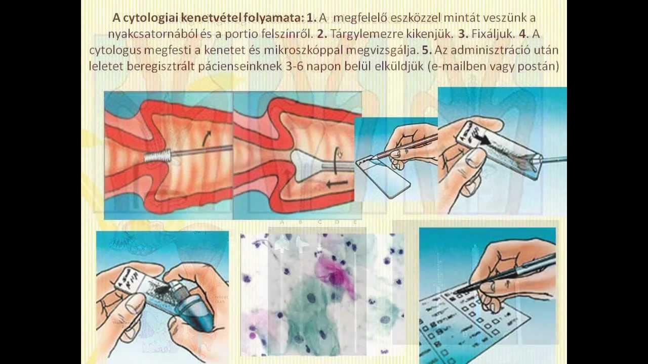a kenet eredményeinek értelmezése a hörgők helmintikus inváziója