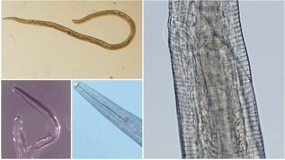 Parazita élt a szemében - képet festett róla - aretemarketing.hu