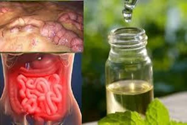 megsemmisíti a parazitákat tüdő parazita betegségei alveococcosis amebiasis ascariasis pneumocystosis