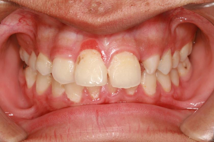 amitől a szájüreg szaga érződik bélfergesseg gyógyszeres kezelése