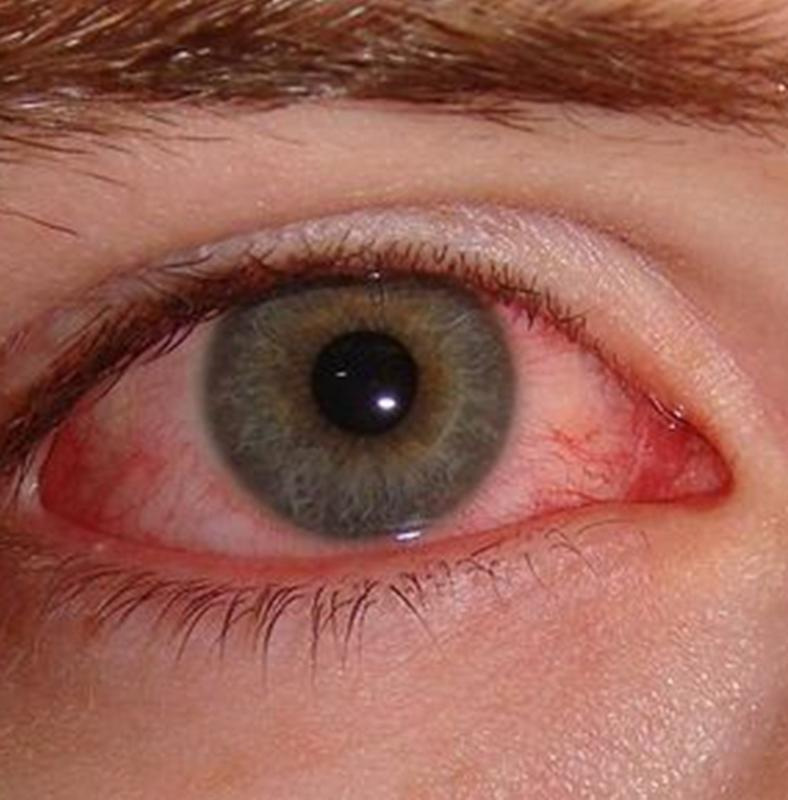 emberi féreg a szemében
